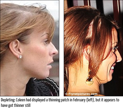colleen rooney ignores previous hair loss warning signs