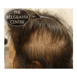 Chronic Telogen Effluvium | Diffuse Hair Loss and Stress