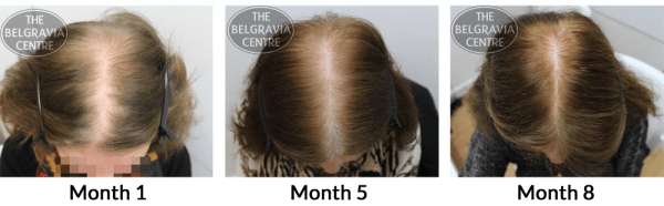 'Will I Get the Same Results From Hair Loss Treatment Now ...