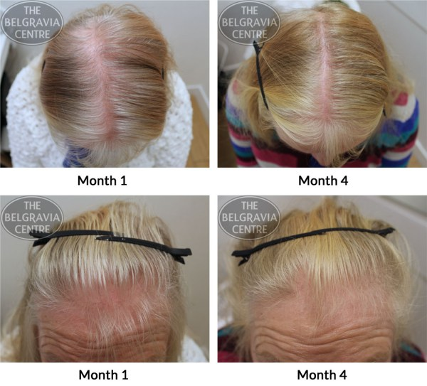 "Hair Growth Success: ""Impressed and Inspired by the Regrowth"""