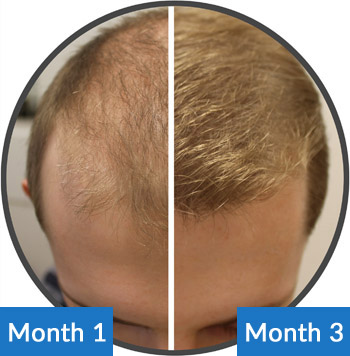 Belgravia Male Hair Loss Treatment Client Josh Is Amazed By The Transformation