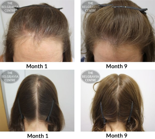 "Hair Growth Success: ""The treatment has worked better than ..."
