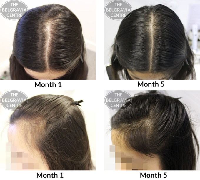success story alert! new female hair loss treatment entry