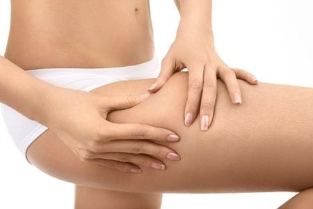 The best stubborn cellulite solution - By Bellabaci Cellulite Cupping