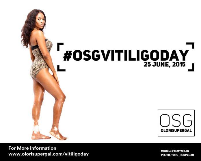 OSGVitiligoDay by Tosin Ajibade of Olori SuperGal - BellaNaija - June2015001 (13)