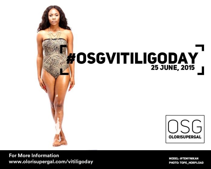OSGVitiligoDay by Tosin Ajibade of Olori SuperGal - BellaNaija - June2015001 (14)