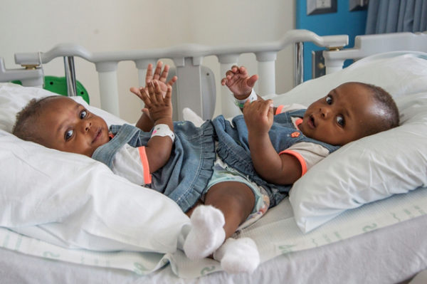 In this Sept. 6, 2016 photo provided by the Le Bonheur Children's Hospital, conjoined twins from Nigeria, Miracle and Testimony Ayeni, sit at Le Bonheur Children's Hospital before being separated in Memphis, Tenn. The girls were conjoined at the lower half of the body and separated following about an 18-hour procedure. (Lisa W. Buser/Le Bonheur Children's Hospital via AP)