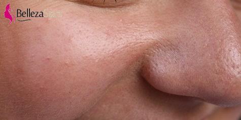 How to Use an Ultrasonic Face Spatula