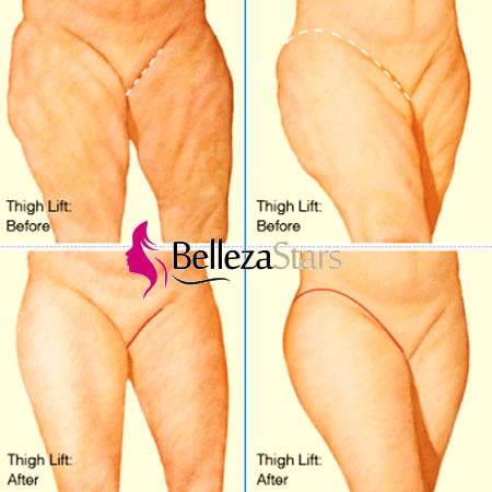 Flabby Thighs Thigh Lift
