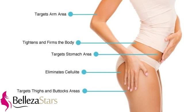 Liposuction weight loss