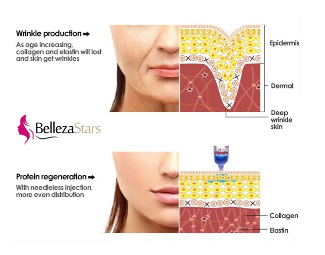 wrinkle removal and pigmentation removal hyaluron pen