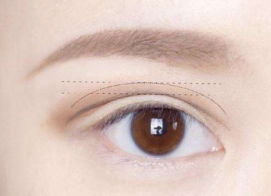 Cut double eyelid postoperative care