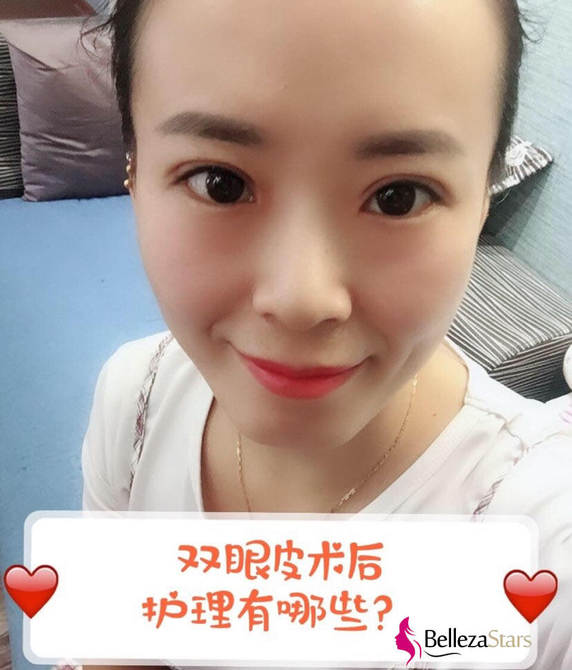 Double eyelid surgery Recovery and Nursing