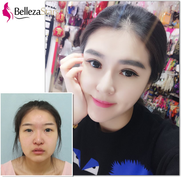 Precautions after double eyelid surgery