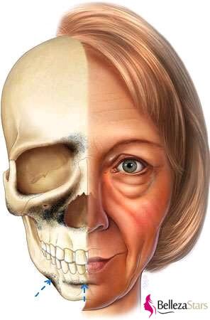 mandibular bone loss