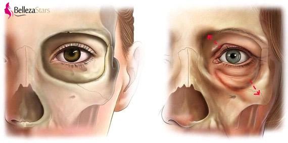 width of the eyelid increases
