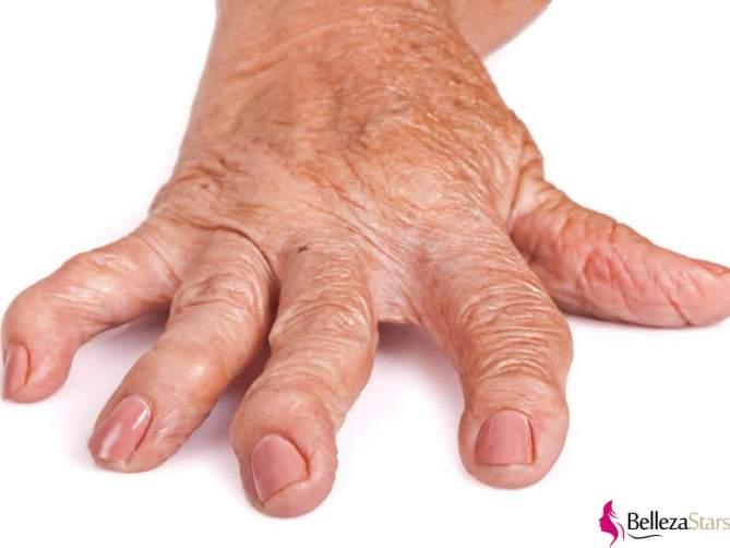Know About Rheumatoid Arthritis