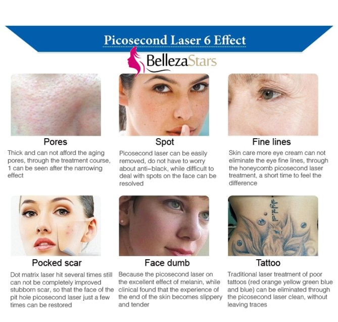 Picosecond Laser 6 Effect