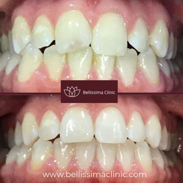 Invisalign Solihull before & after 4