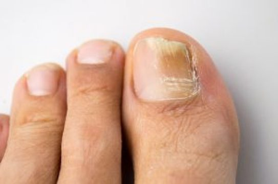 Image result for brittle nail