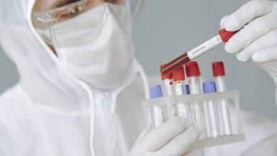 Photo of Las personas con sangre tipo 0 tienen hasta un 18% menos de riesgo de padecer el Covid-19