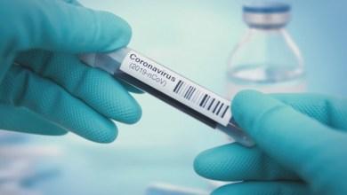 Photo of El óxido de nitrógeno podría ser un posible tratamiento para el COVID-19