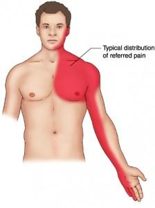 , Caractere angina pectorala – durere in piept