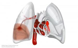 tromboembolism pulmonar embolie pulmonara