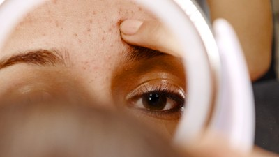 How to get rid of white/black heads Bio with Thysiamore