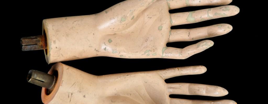 No Prosthetic Hands