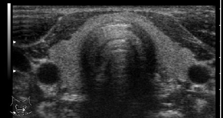 ecografia tiroide collo
