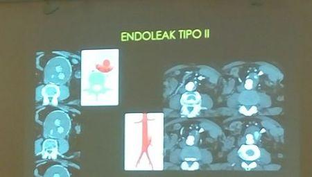 aneurisma aorta endoleak TAC