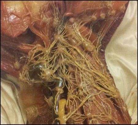 linfonodi collo