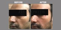 FILLER ( CORRECTION OF TEAR TROUGH WITH FILLER )before & after image 7