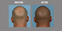 Scalp Micro Pigmentation before & after 4