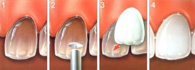 Porcelain Dental Veneer San Jose
