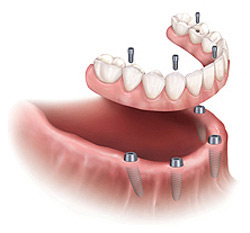 Screw Retained Lower Denture San Jose