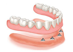 Snap On Dentures San Jose
