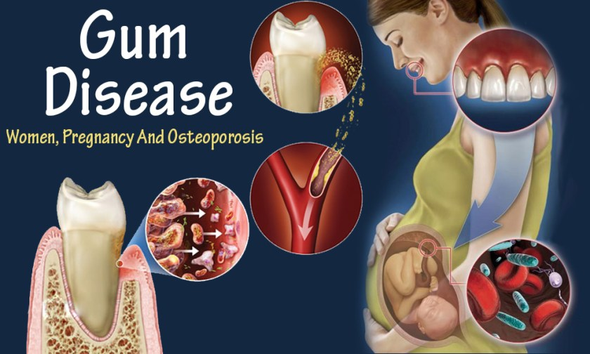 gum disease during pregnancy