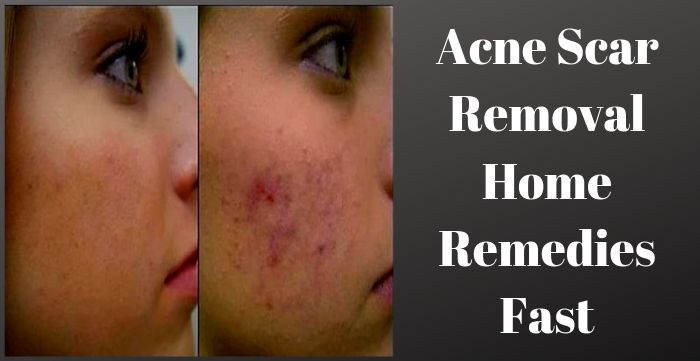 Acne Scar Removal Home Remedies Fast Best Health N Care