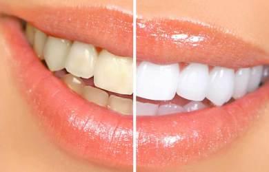 How-to-Whiten-Teeth-Naturally