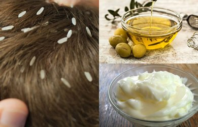 Treat Head Lice Naturally