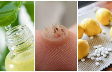 treat warts naturally