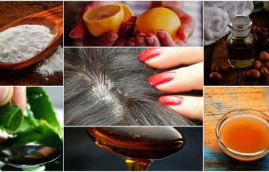 Effective Home Remedies for Dandruff