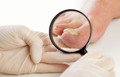 Essential Oils to Treat Onychomycosis Naturally