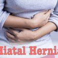Symptoms of a Hiatal Hernia