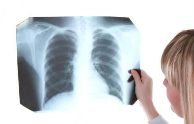 Signs and Symptom of Tuberculosis
