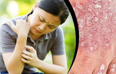Foods that Can Help Control Psoriasis