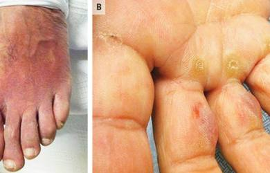 Symptoms of Eosinophilia-Myalgia Syndrome