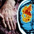 What is vascular dementia